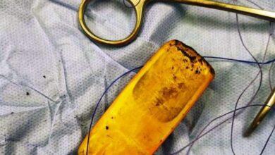 Photo of بالصور.. استخراج هاتف محمول من «بطن» مريض في مستشفى أسوان الجامعي
