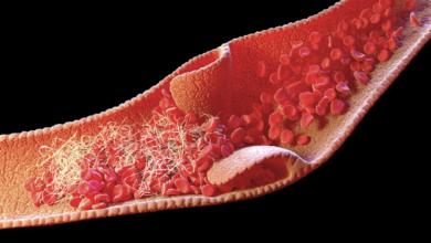Photo of ازاي تمنع تجلط الدم بعلاجات طبيعية.. تعرف عليها